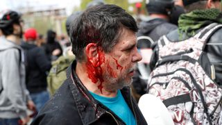 A injured man has blood on his face