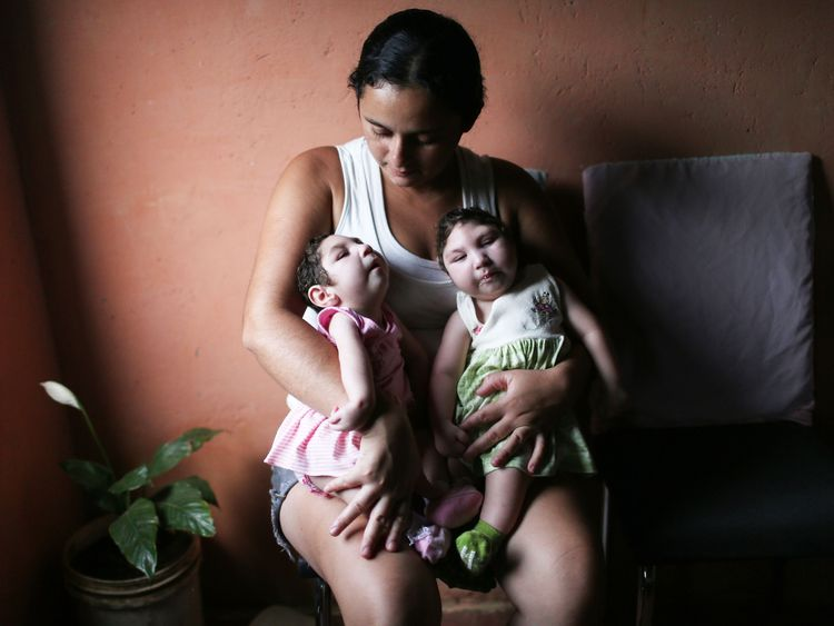 Twins born with microcephaly in Areia, Brazil