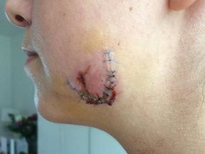 The Met Police released this image of the women's bitten face