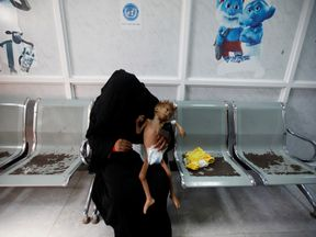 A woman holds her malnourished child at a clinic in the Yemeni sea port of Houdeidah