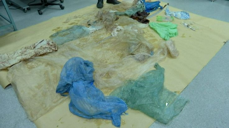The whale's intestines were clogged with plastic, preventing it from feeding