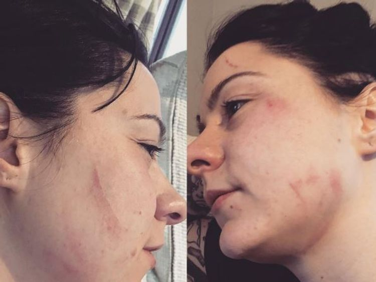 A spokesman for Spraggan said she suffered cuts and bruises to the face and bite lacerations