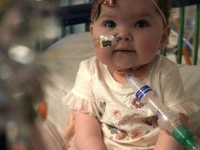Amelia Dowding was born with Shone's Complex, a heart condition
