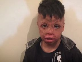Mannan Osso was nine when his tent caught fire in a migrant camp in Greece