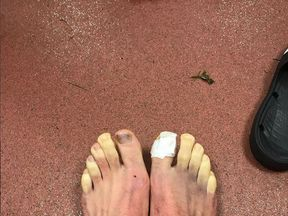 Adam Lallana's toes turned yellow in the freezing conditions