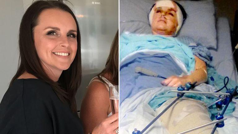 Rachel was left with severe injuries after her estranged husband shot her