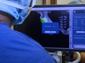 The Mako software helps surgeons plan their operation