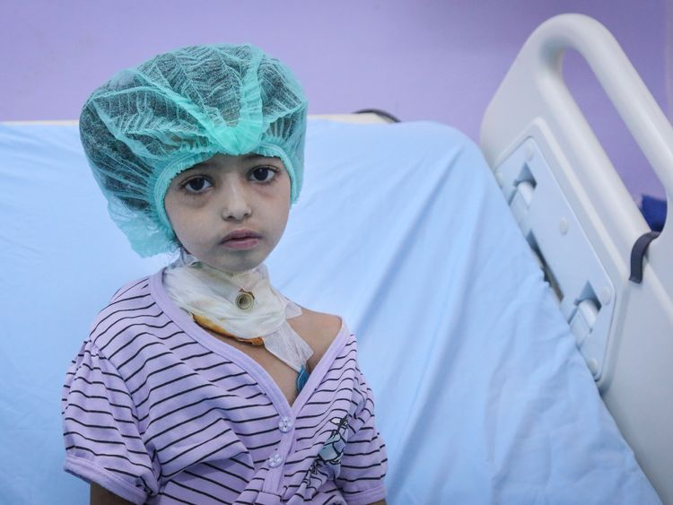 A girl at Al Thawra hospital, where Adam is being treated. Pic: Unicef