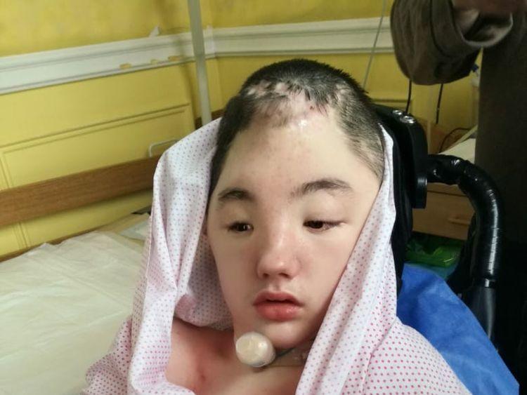 Vanya suffered severe brain injury