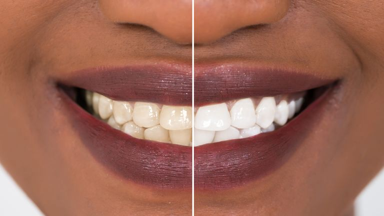 The study warns we could start seeing widespread enamel damage in the next few years. File pic